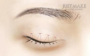 通过这个小伤口进行订书针双眼皮手术